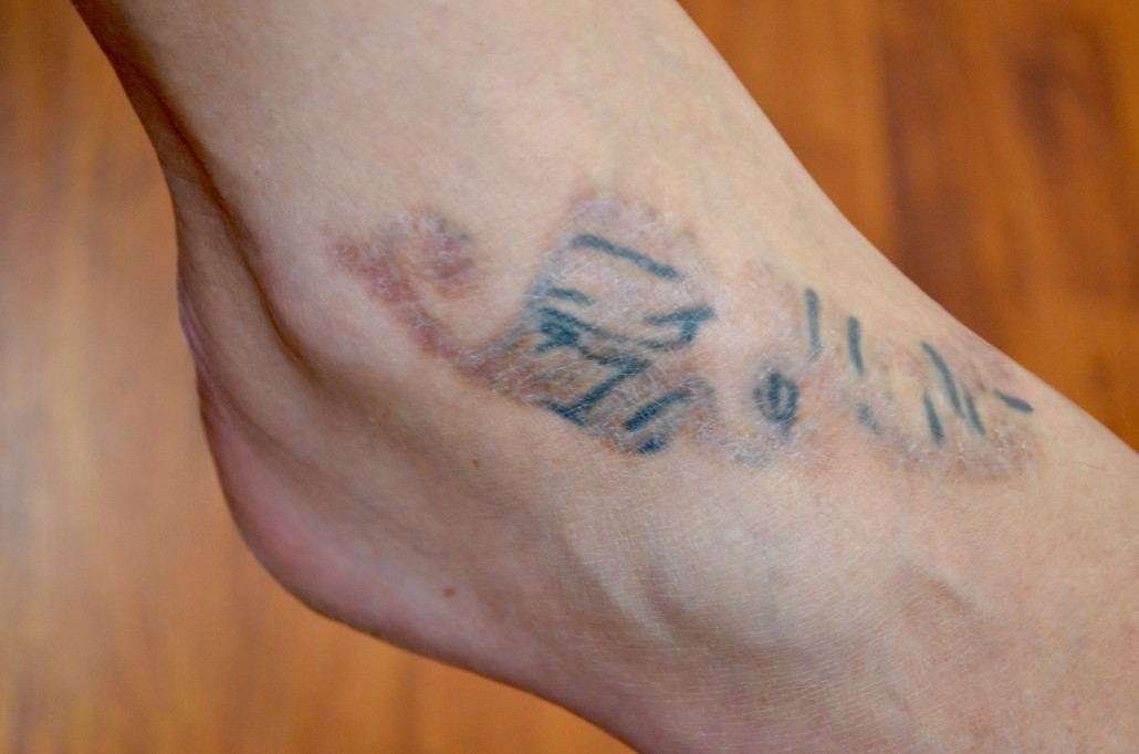Skinial Treatments Leave Scars - Disappear Ink Tattoo Removal Clinic