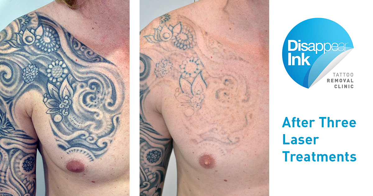 Out with the Old, in with the New - Disappear Ink Tattoo Removal Clinic