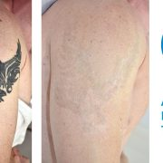 bicep tattoo removal